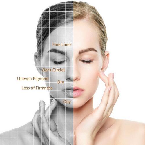 Skin analysis - Facial care