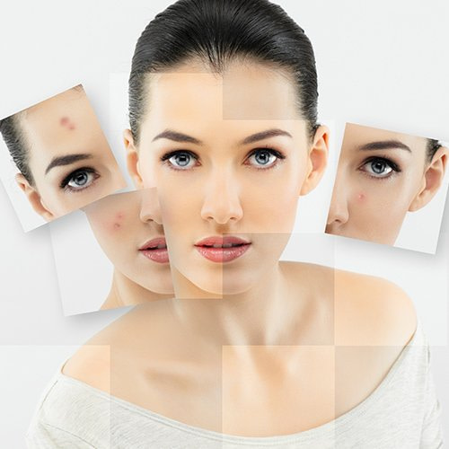 Professional facial peeling