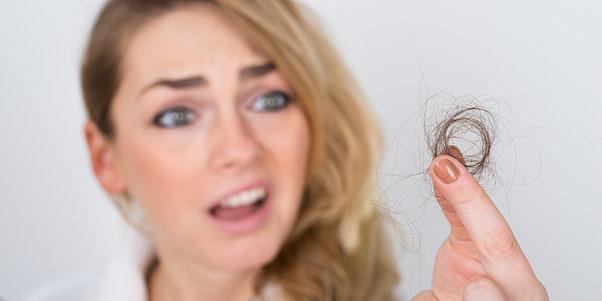 hair loss lausanne